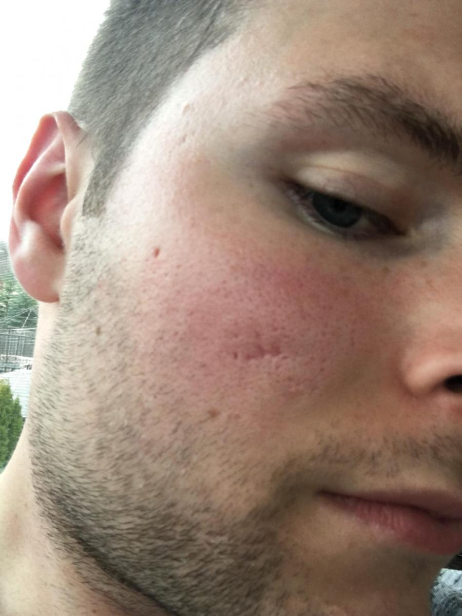 ice pick and boxscar acne scars