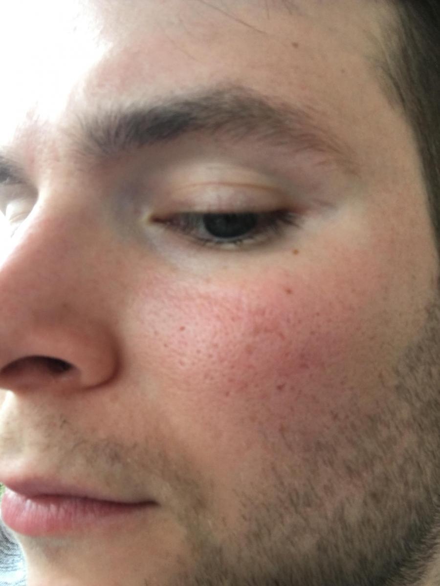 mild scrared pores