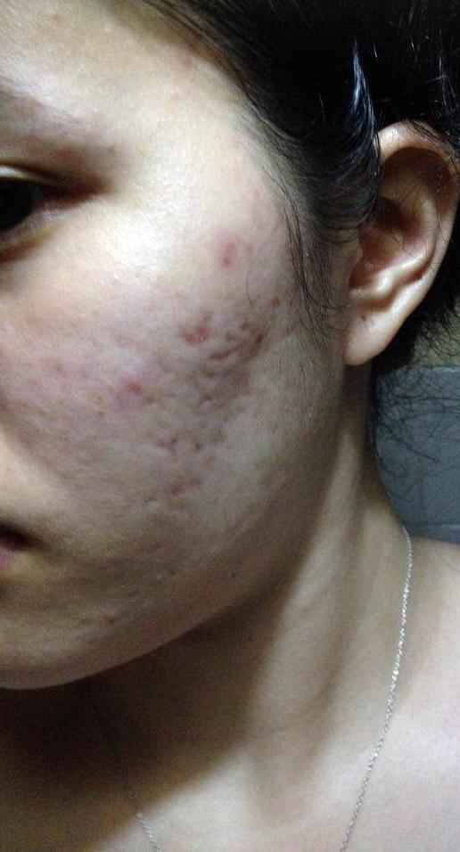 Scars or Hyper-pigmentation?