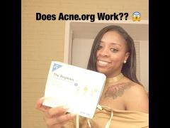 My Acne journey |2 year skin update| ACNE.ORG
