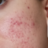 Pitted red scar active acne