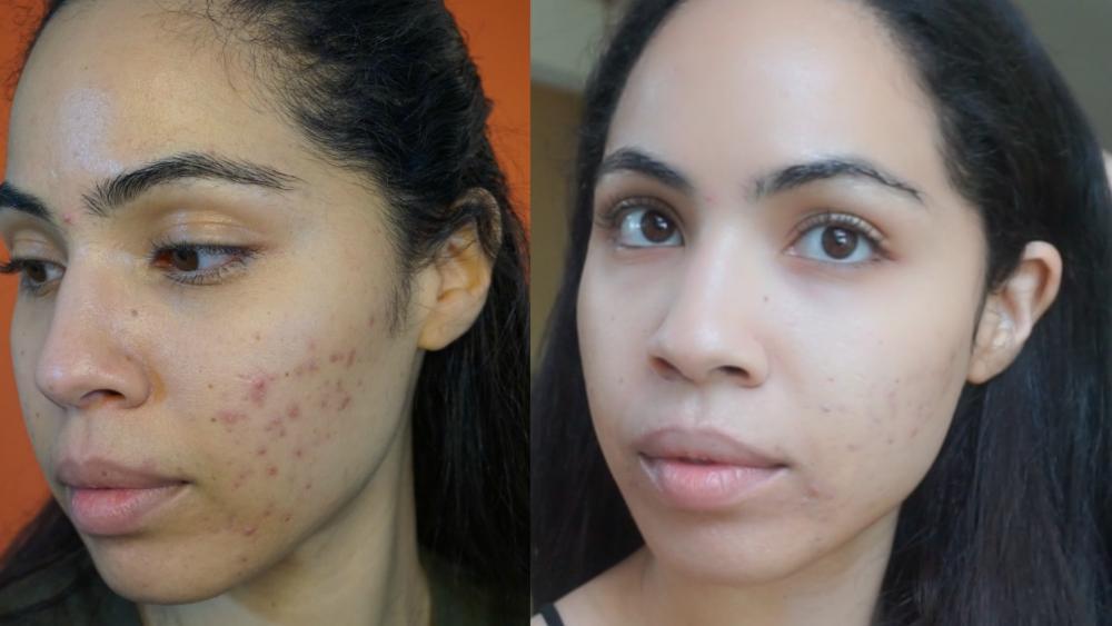 cystic acne .jpg