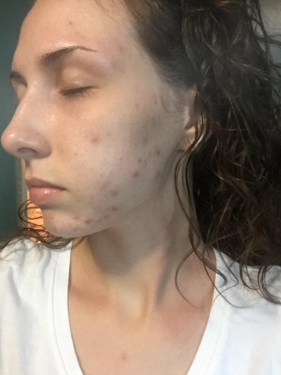 Minocycline And Epiduo Personal Logs Acne Org