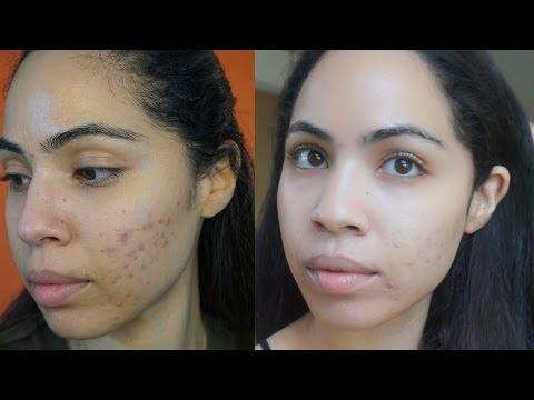 Acne Update - Relapse and Bounce Back
