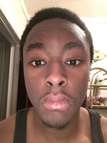 Should I go back on accutane?