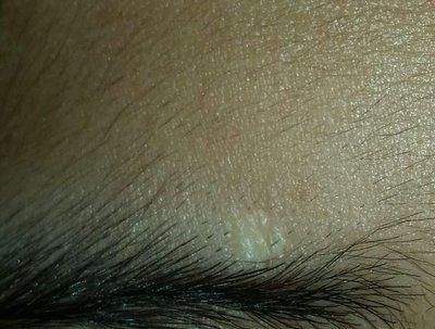 deep white scar