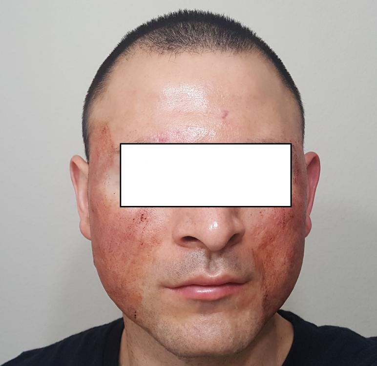 post subcision front face.jpg