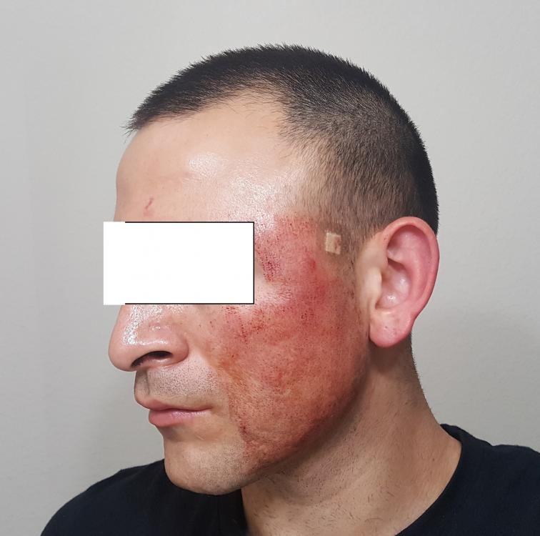 post subcision left face .jpg