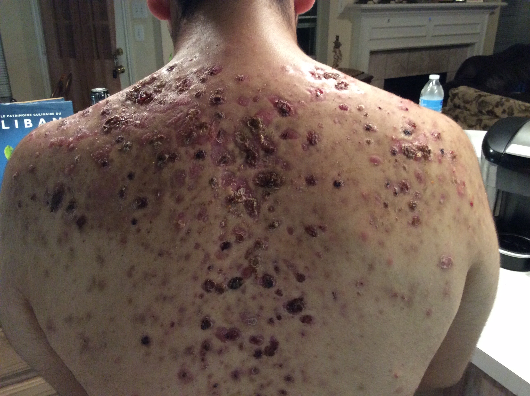 Severe nodular cystic acne, the full story - Back/Body