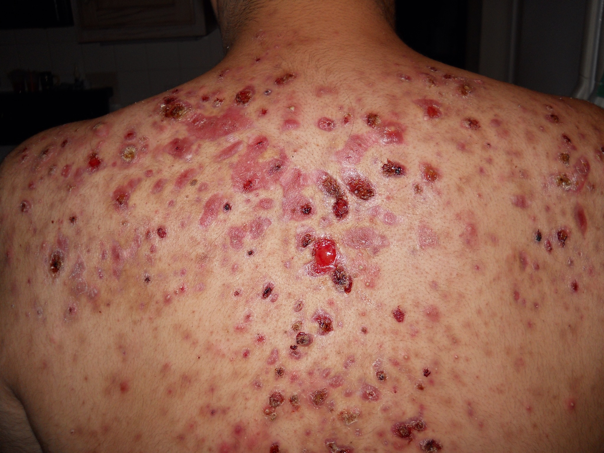 Severe nodular cystic acne, the full story - Back/Body ... Severe Cystic Acne Scars