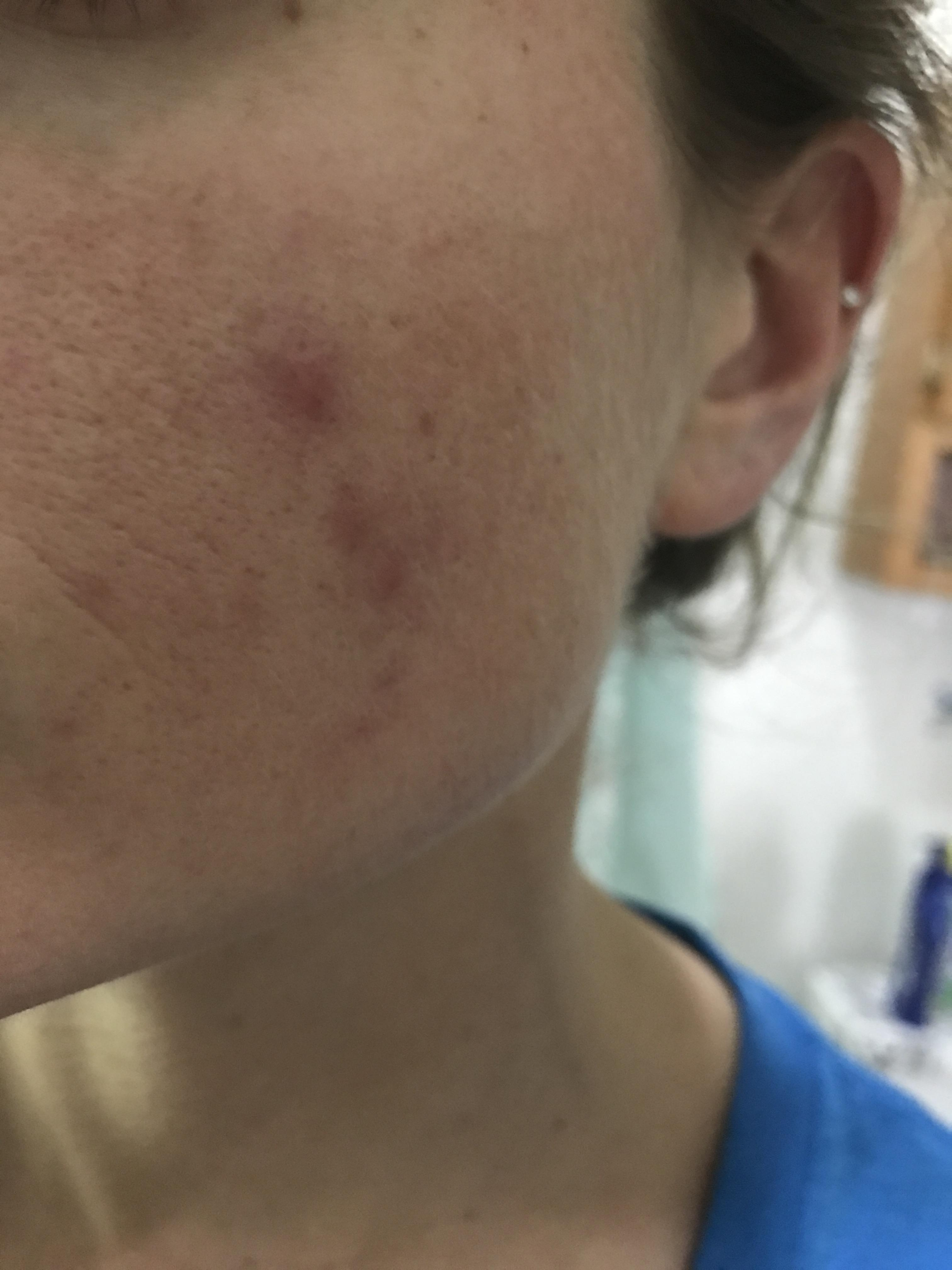 Pimples clustered on one cheek adult acne acne community img0999g pooptronica