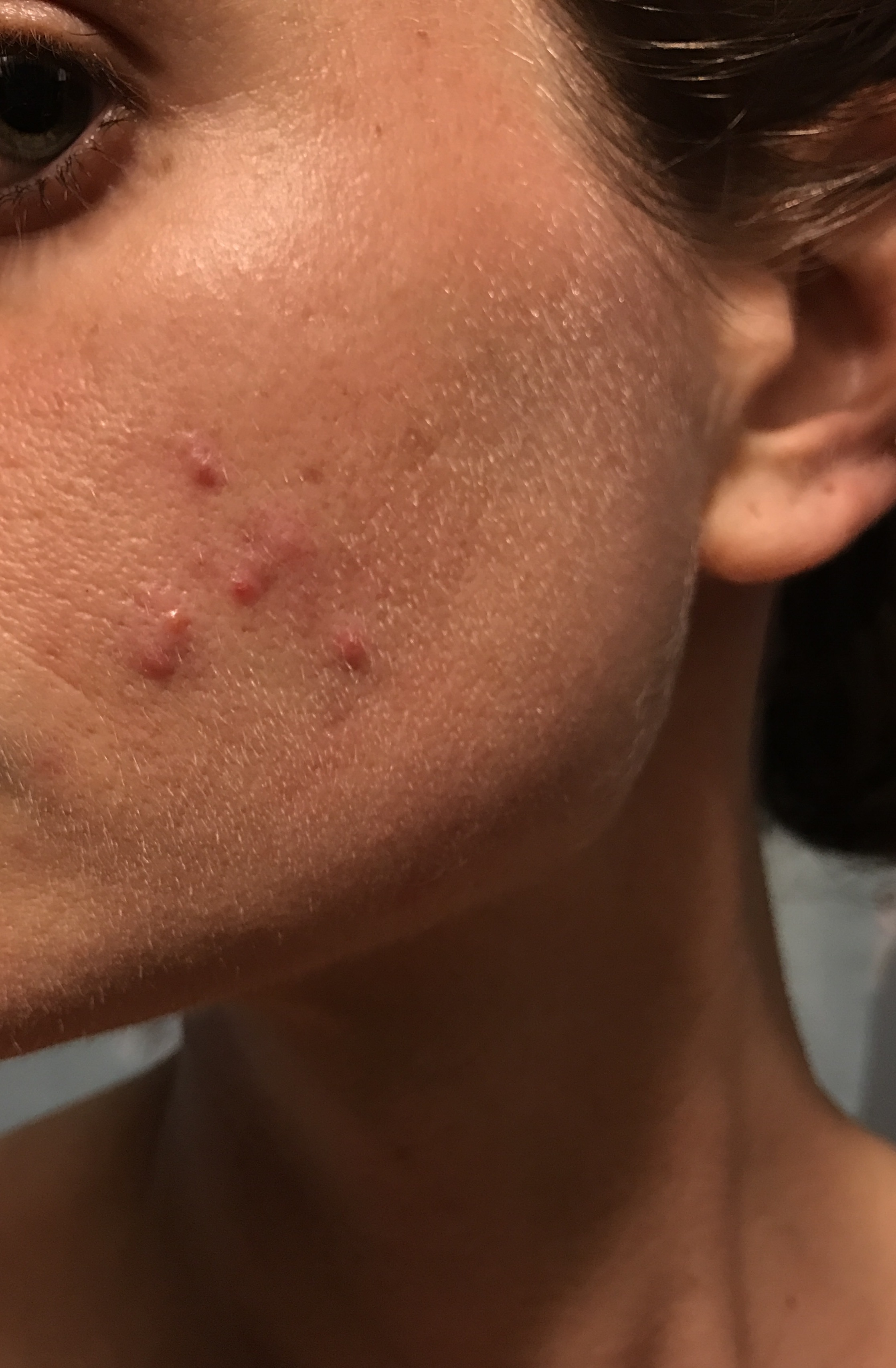Pimples clustered on one cheek adult acne acne community img1130g pooptronica