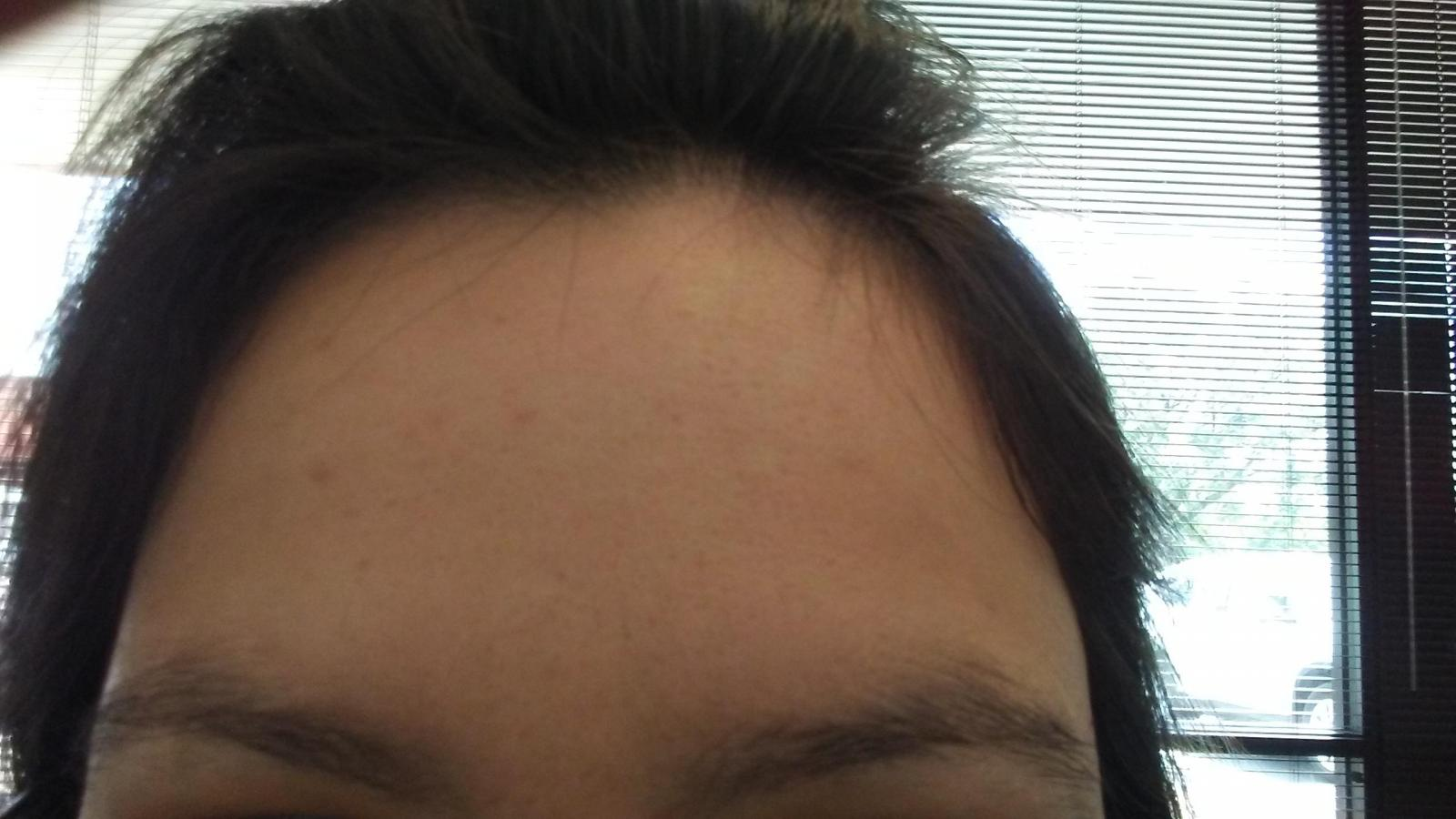 14-days-forehead
