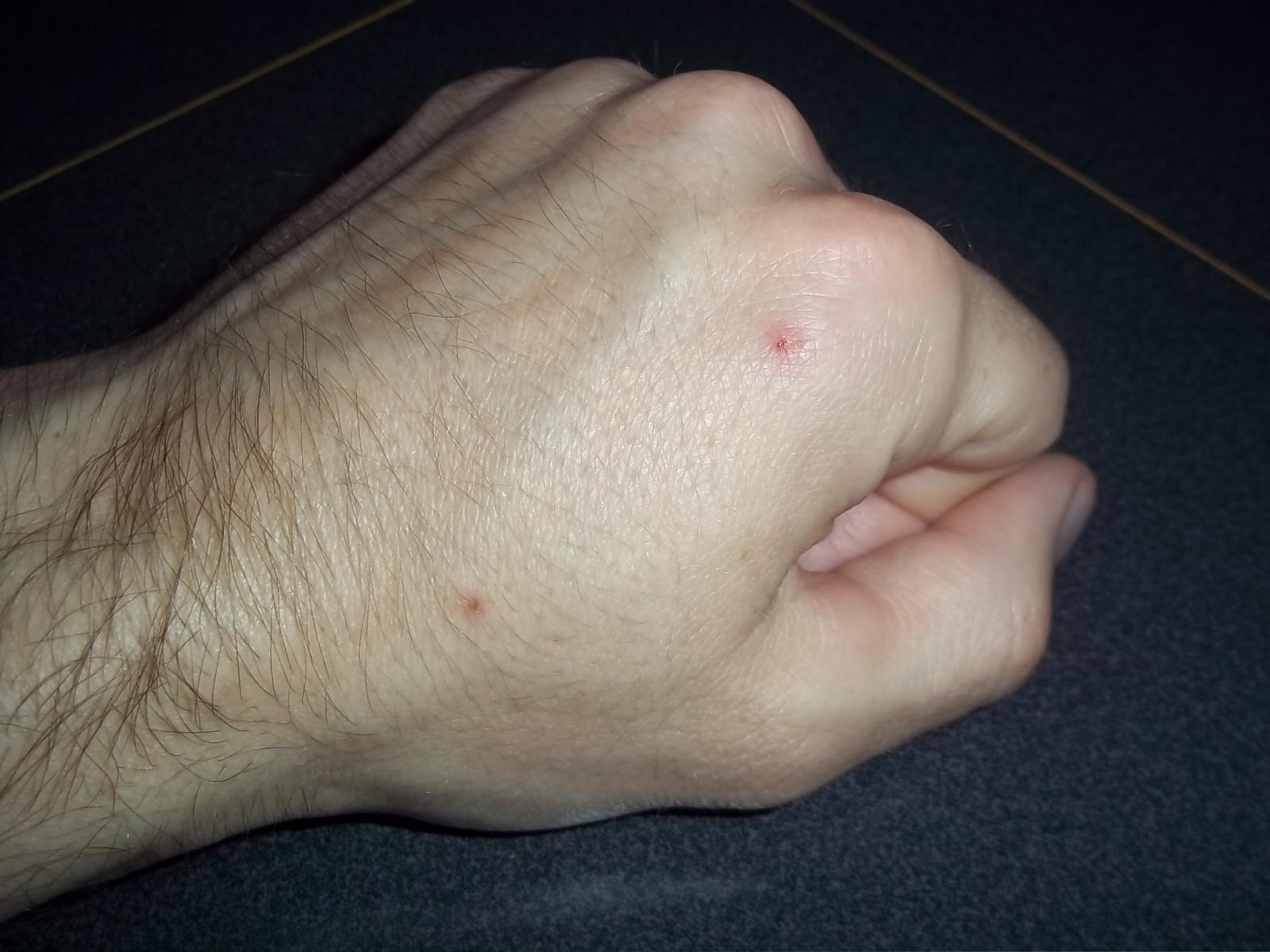 Arm, Hand, and Finger Acne