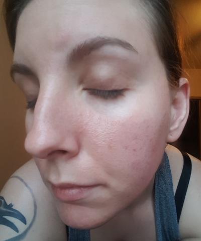 Skin Diary