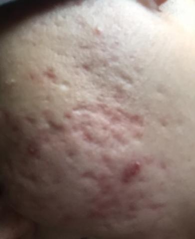 Acne scars type