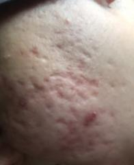 Acne scars type