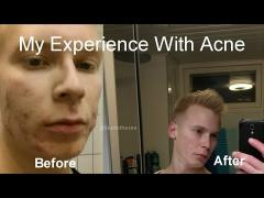 My Experience With Acne and What Actually Helped Me