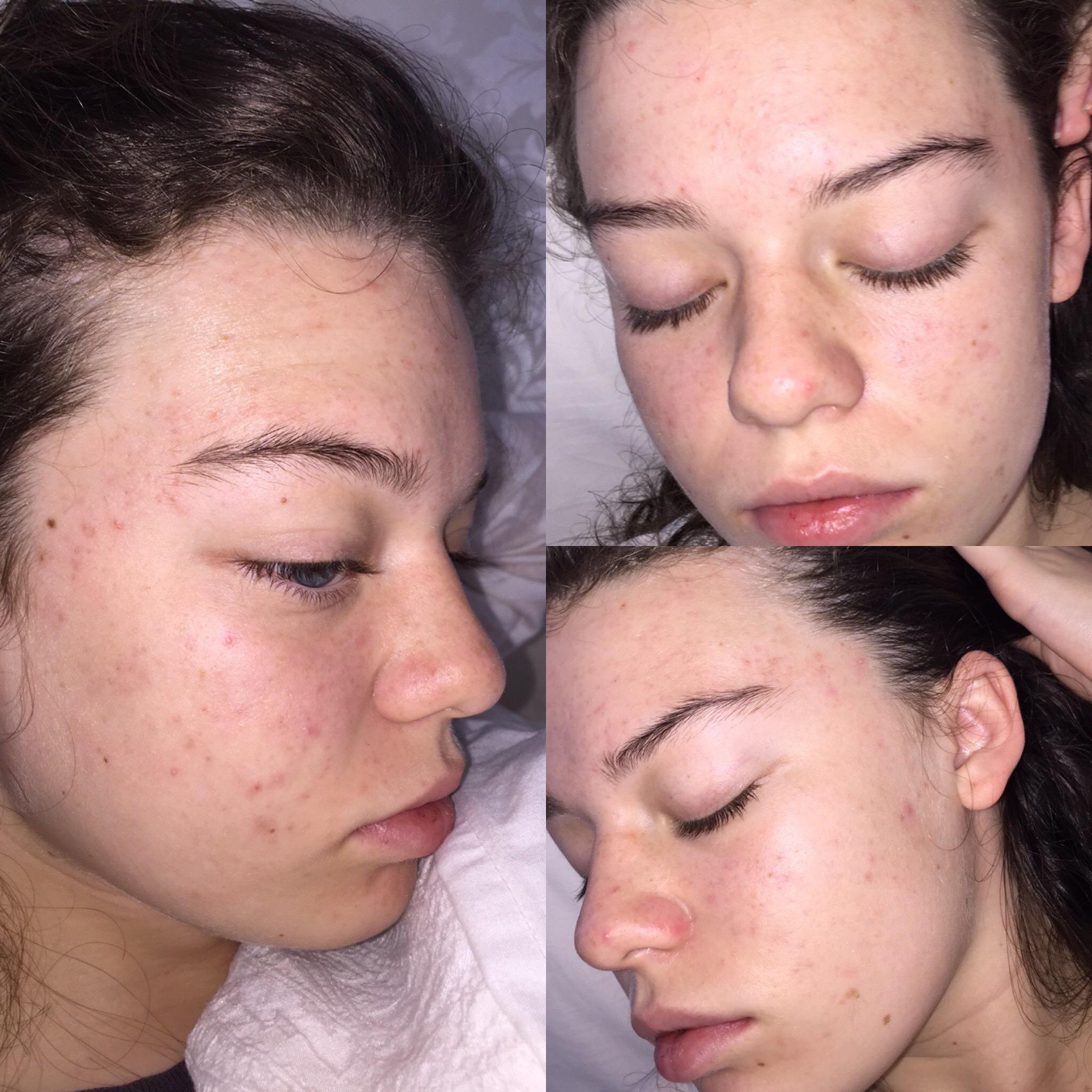 omega 3 acne