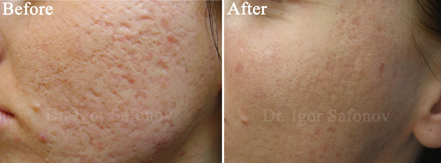 cicamed scar review