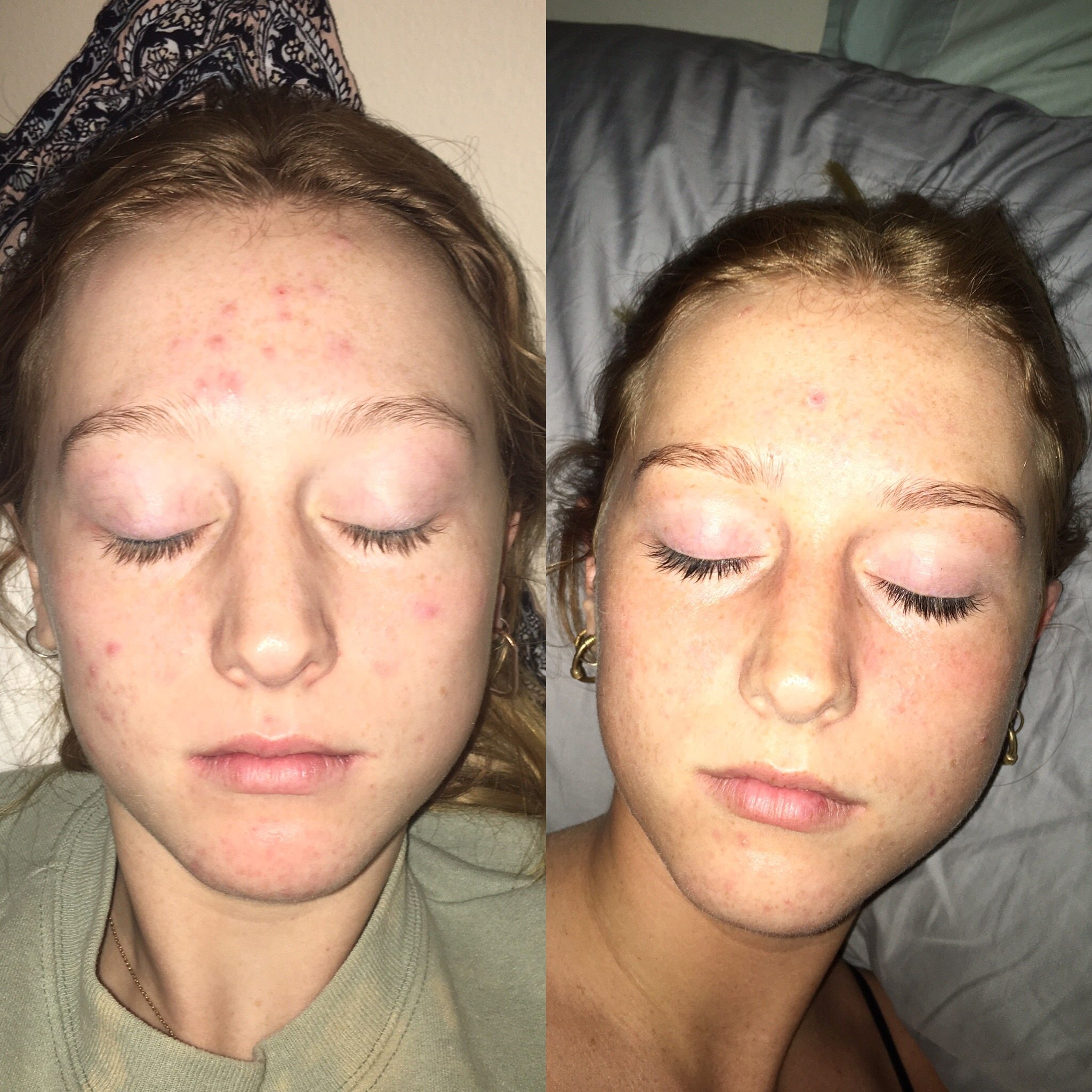 can kyleena cause acne