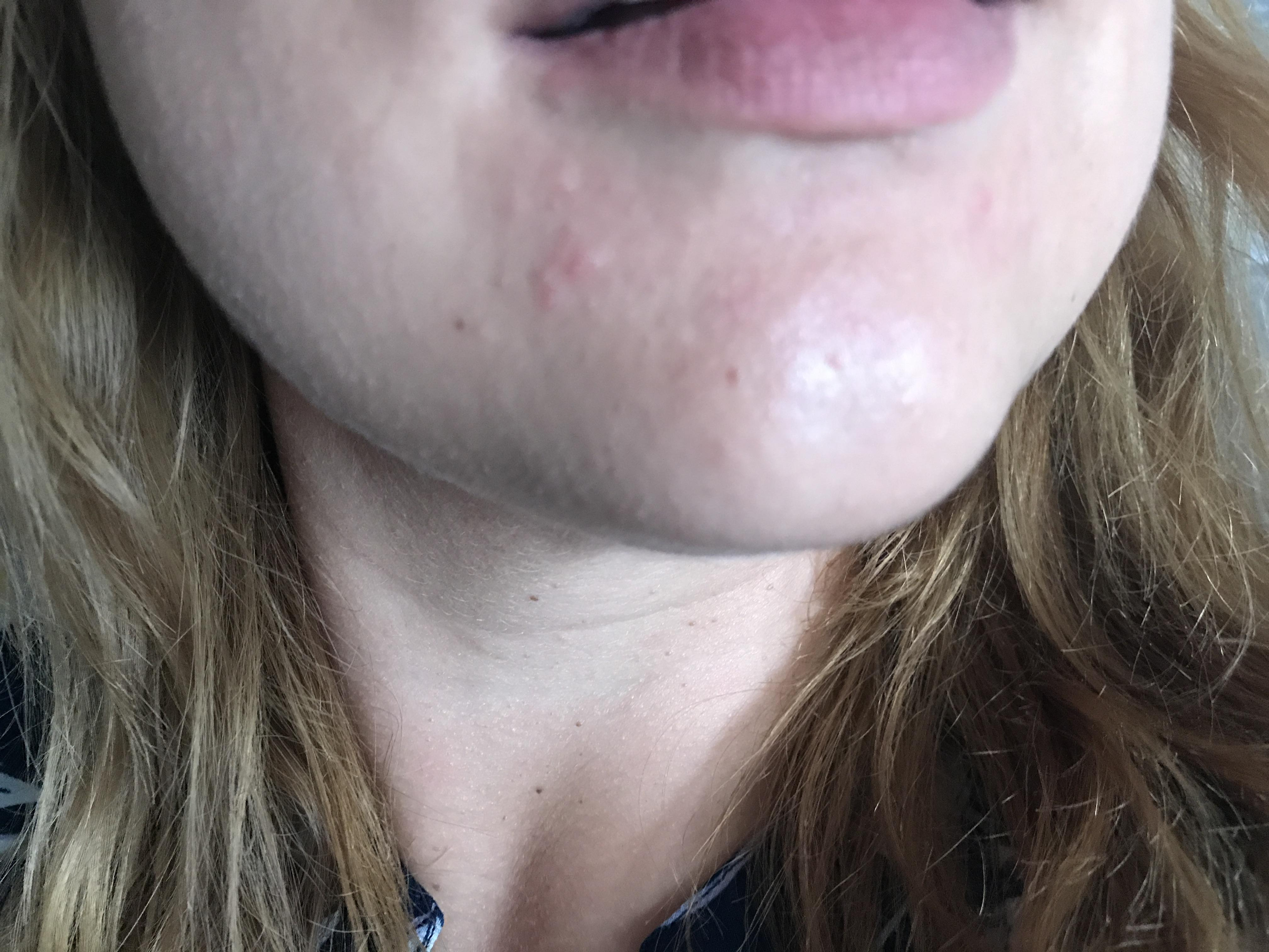 Clusters around mouth adult acne acne community anything have a little fluid in them no gunk or sebum but i cannot get rid of them at all ive tried cleaners for sensitive skin stopped wearing make up ccuart Images