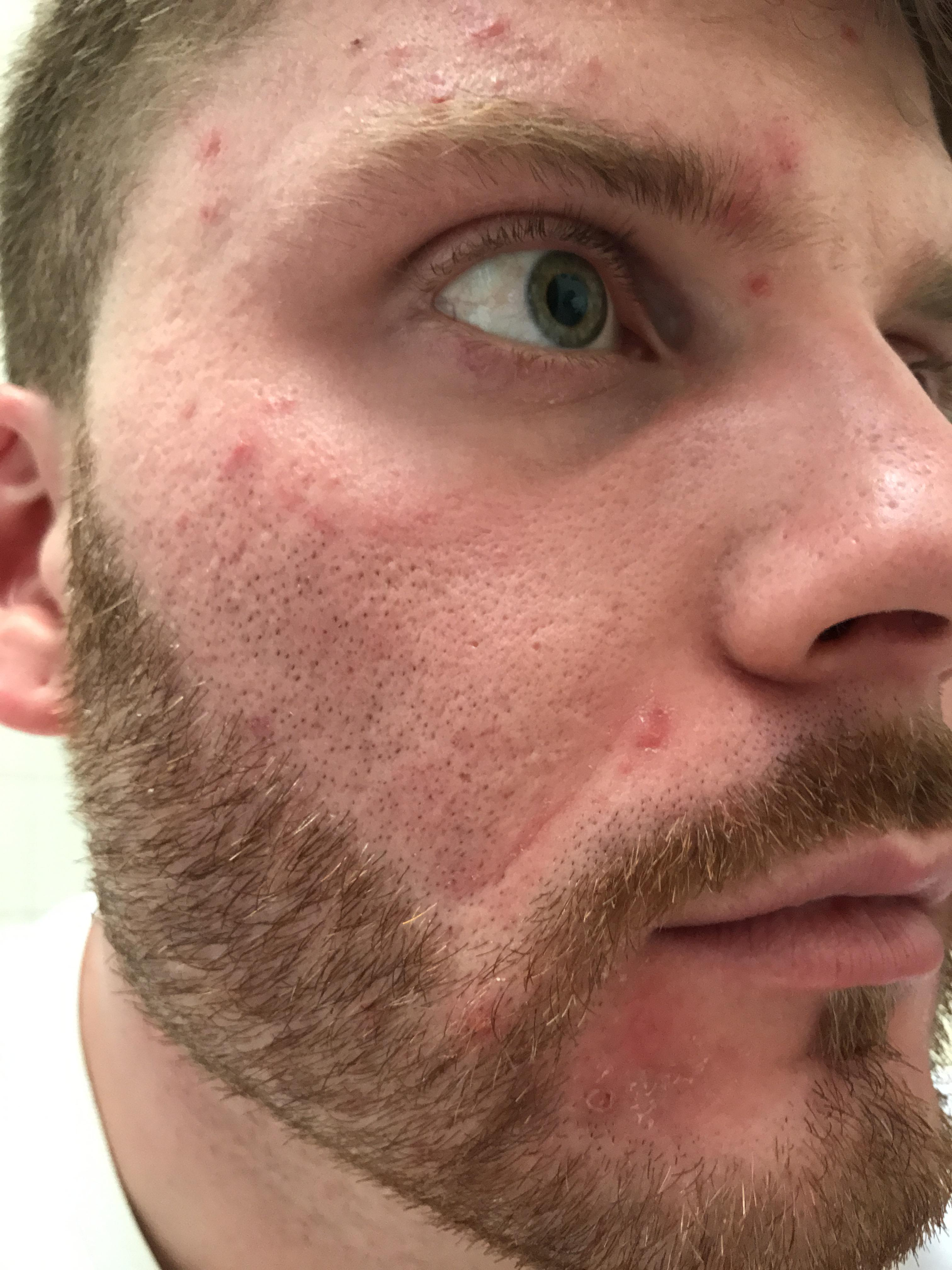 opinions on resurfacing methods for my scars scar