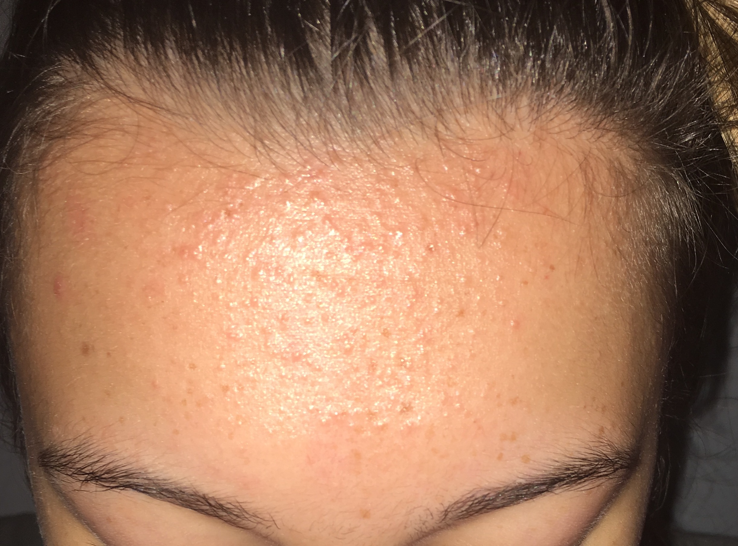 Forehead Bumps Acne Nothing Works General Acne Discussion Acne Org