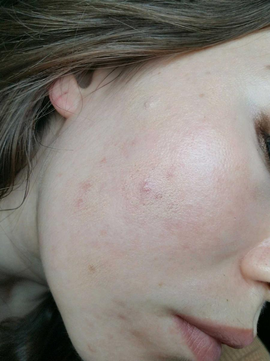 Does my skin look really bad?