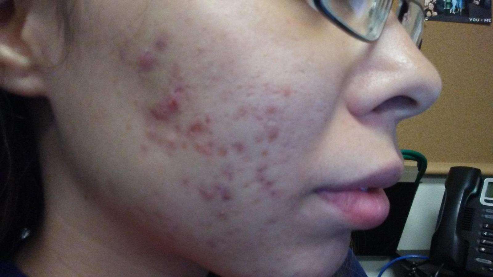 Right side 1 month on minocycline 100mg
