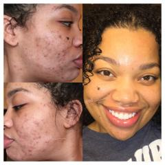 My Acne.org Regimen Results!