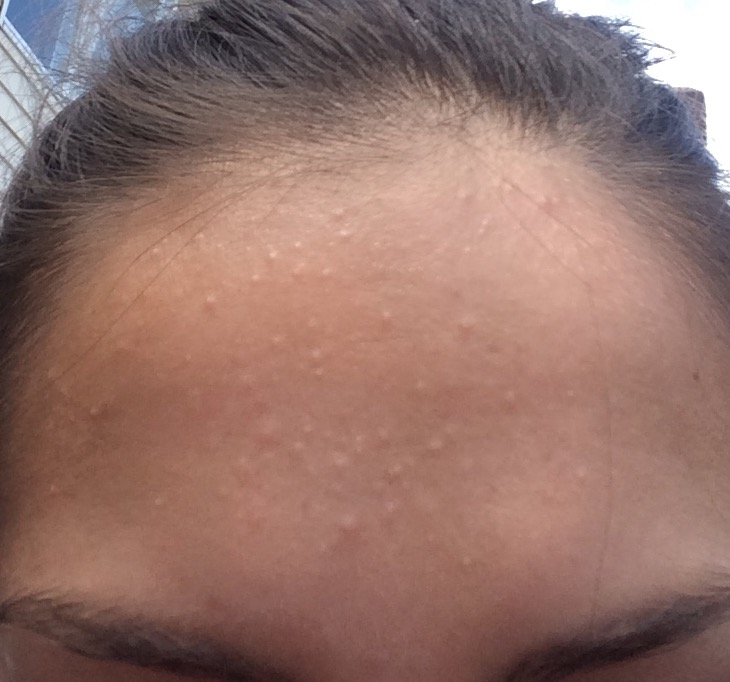 Small Bumps on Forehead - General acne discussion - Acne ...