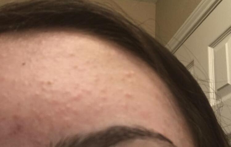 Unterlagerungen stirn