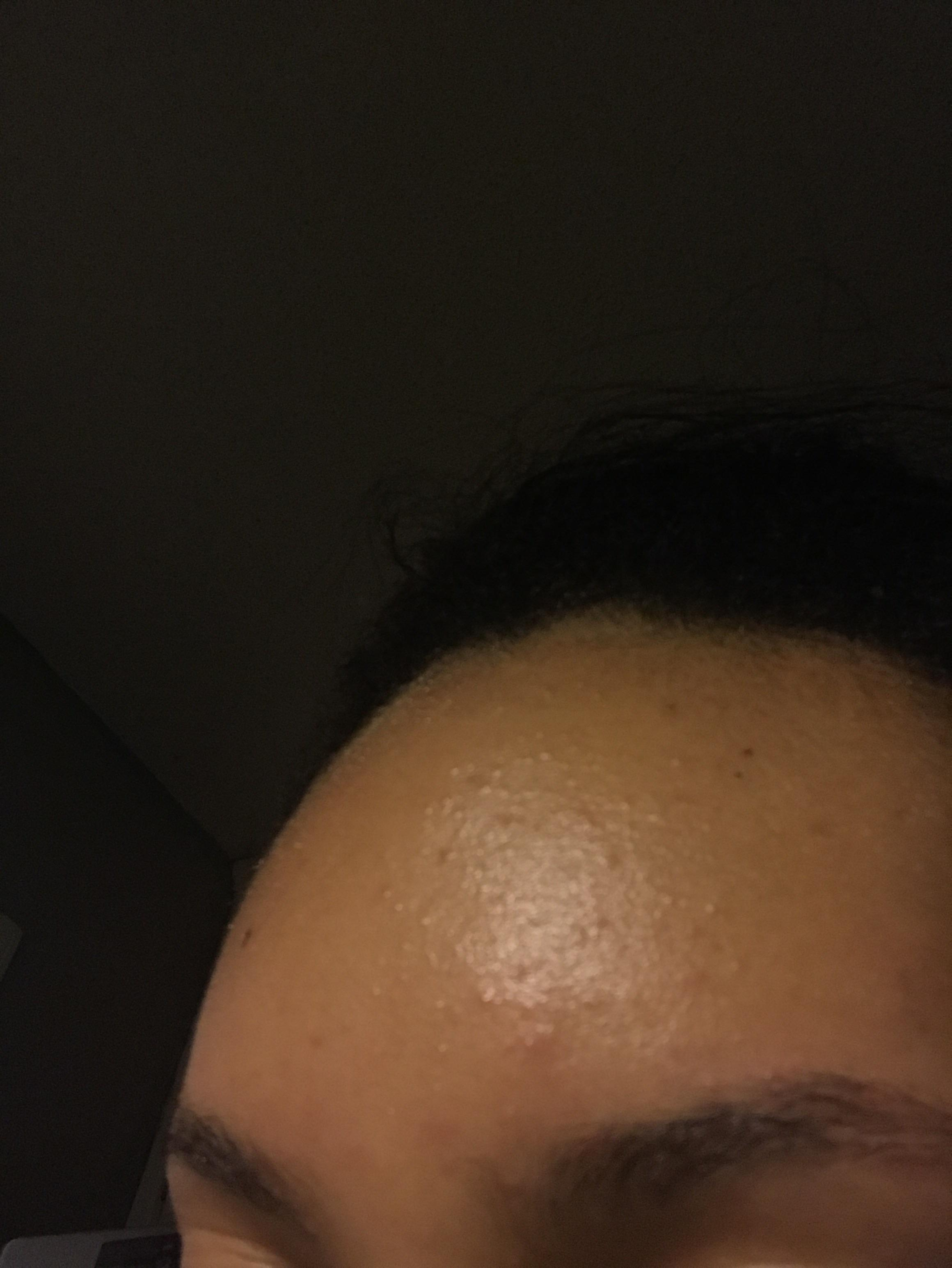 how to clear acne bumps on forehead
