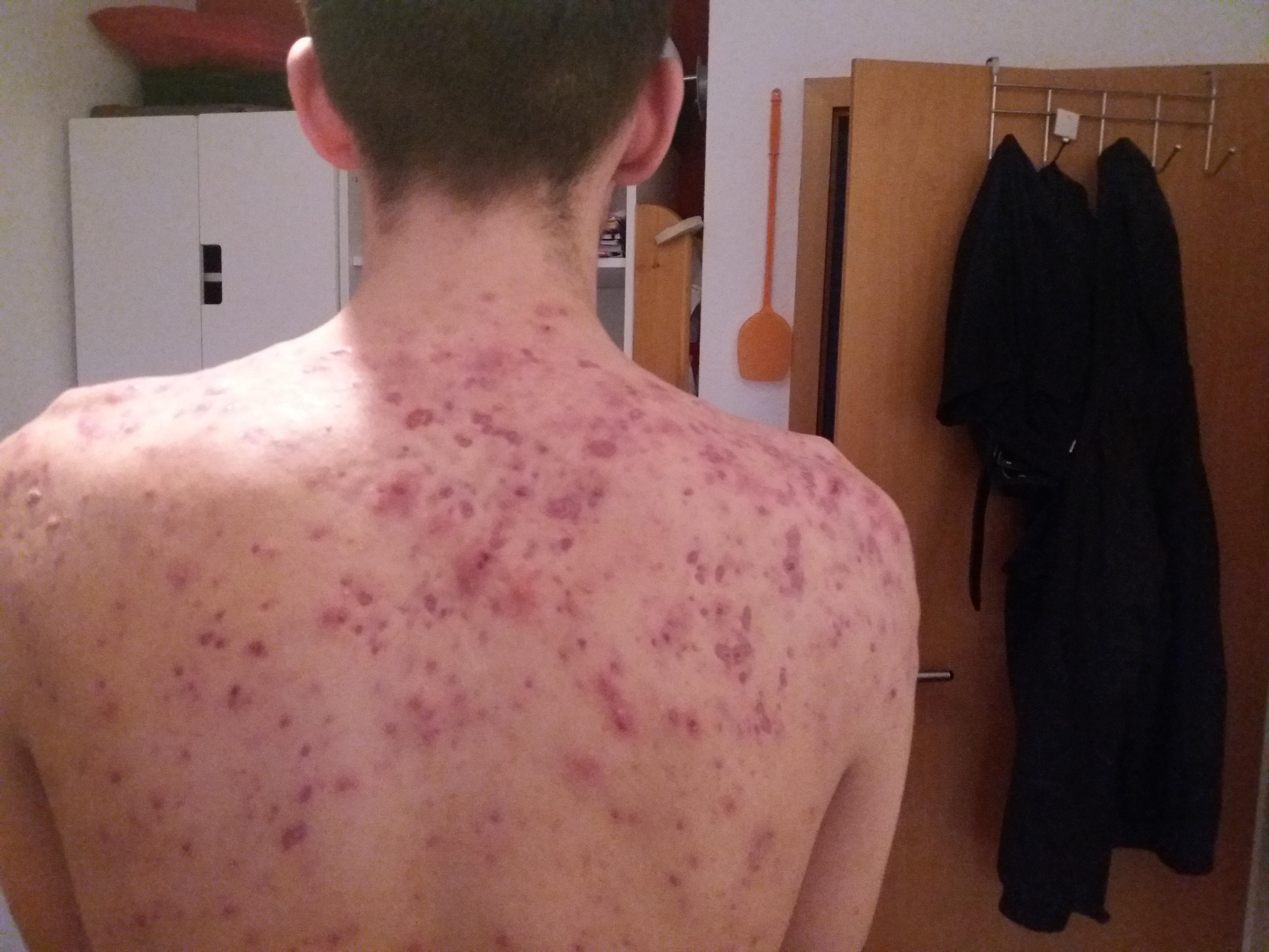 accutane before after