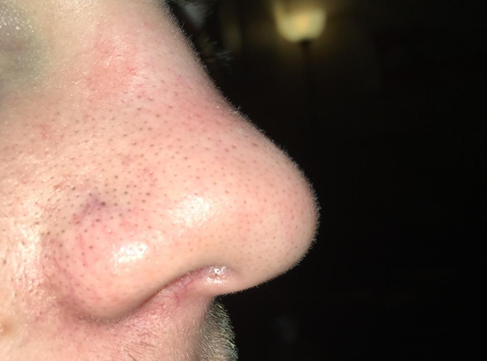 Images of Sebaceous Filaments Nose - #rock-cafe