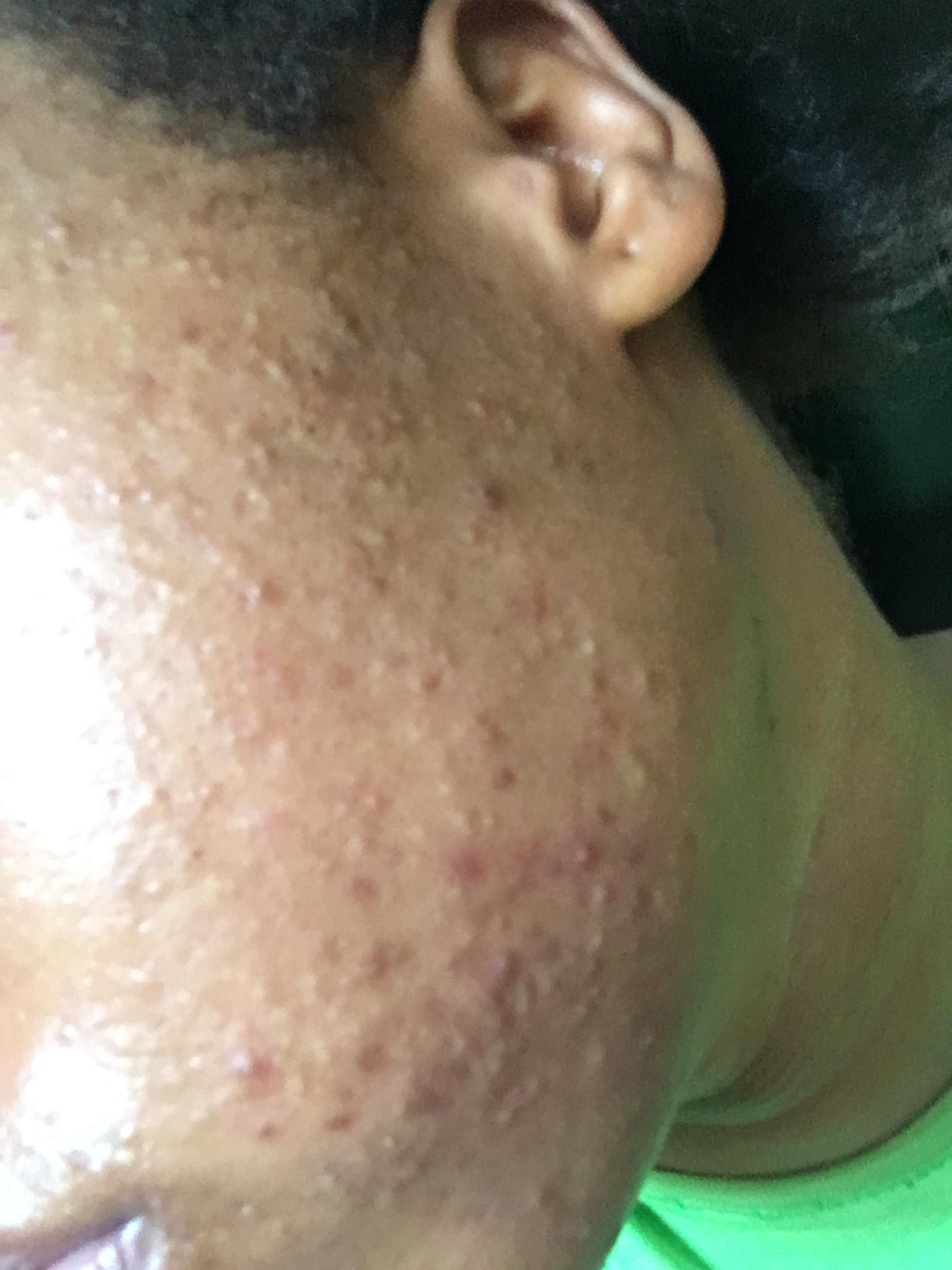 pimple keeps refilling