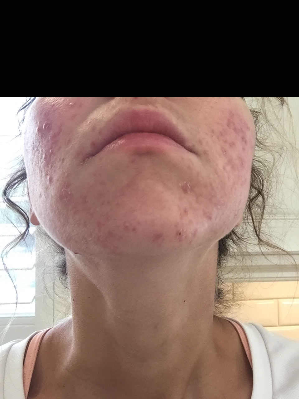 Facial hyperpigmentation and prednisone-7034