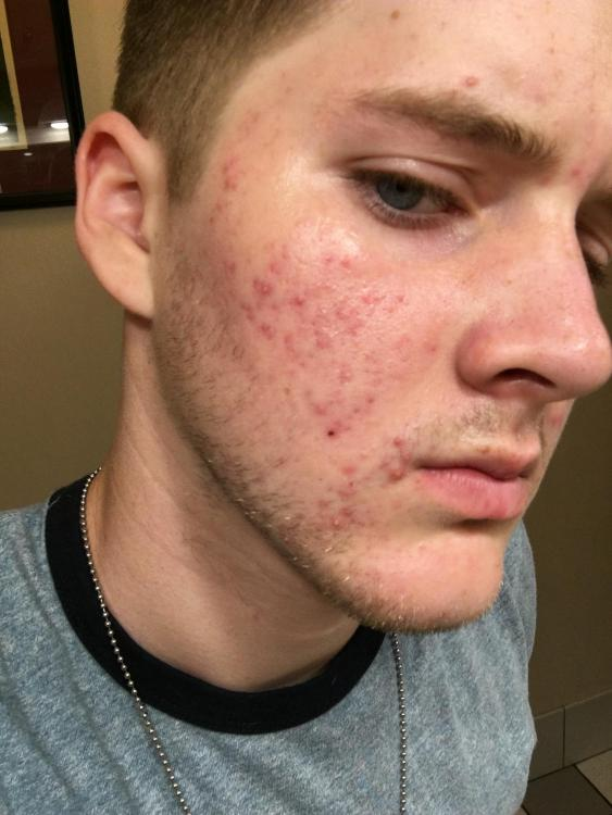 Hyper Pigmentation With Acne Hyperpigmentation Red