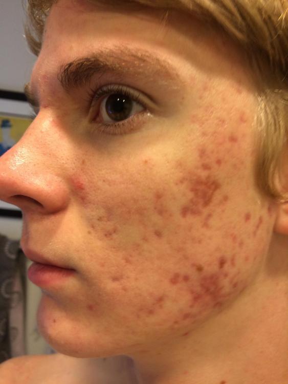 accutane fungal acne