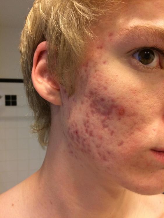 accutane changes pores