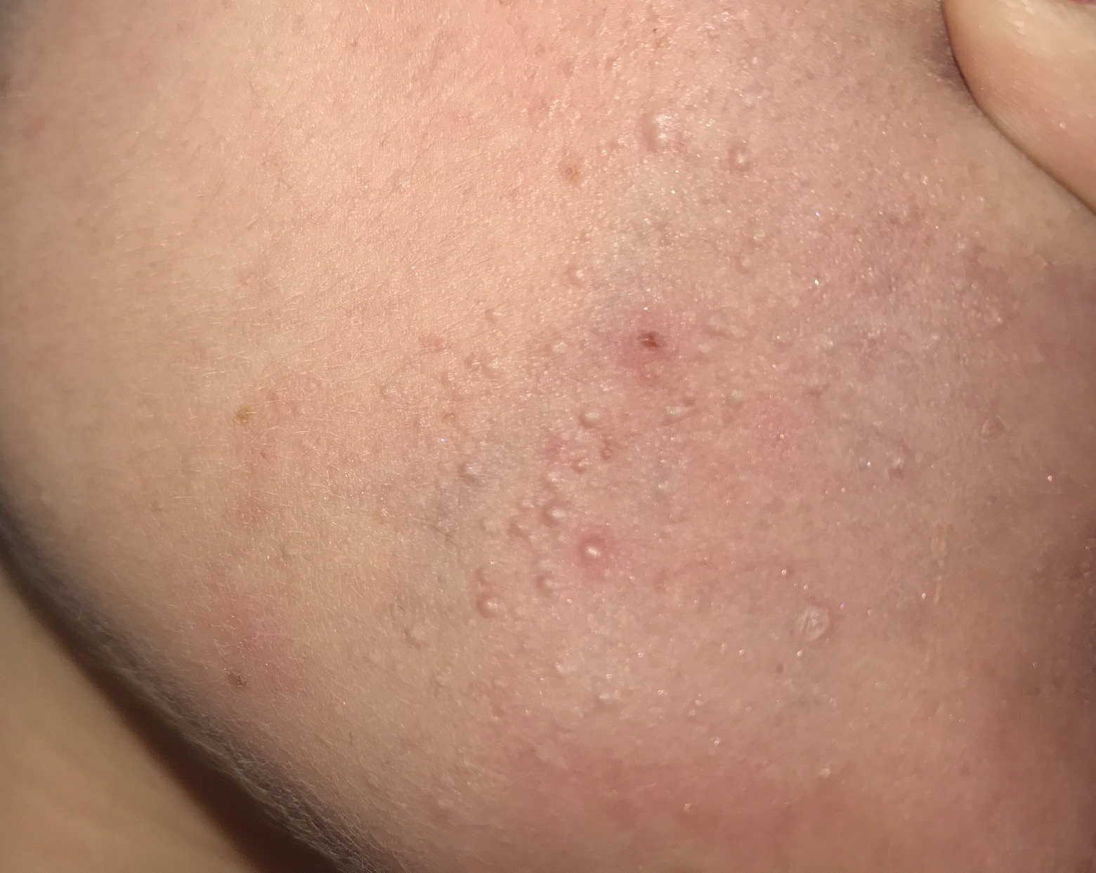 Facial white bumps under the skin picture 907