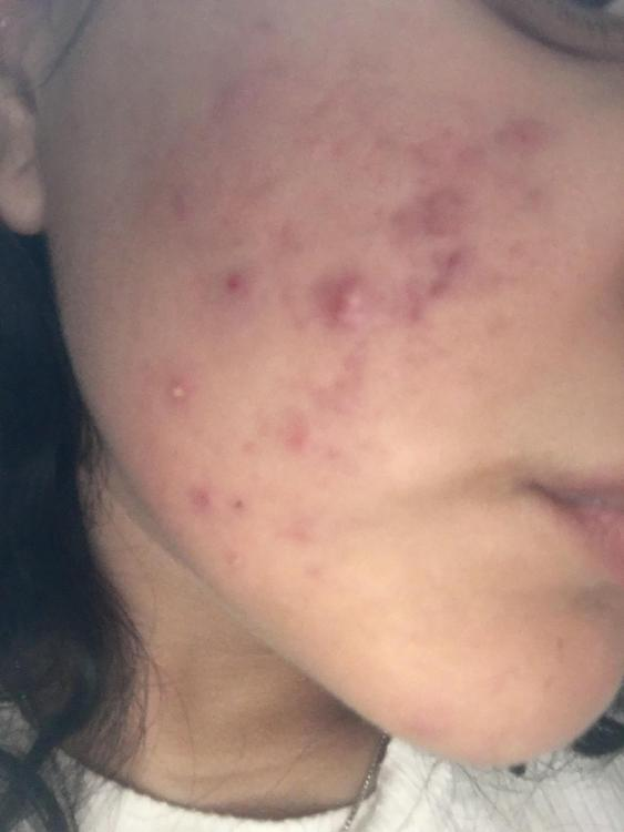 I Can T Tell If I Have Cystic Acne General Acne