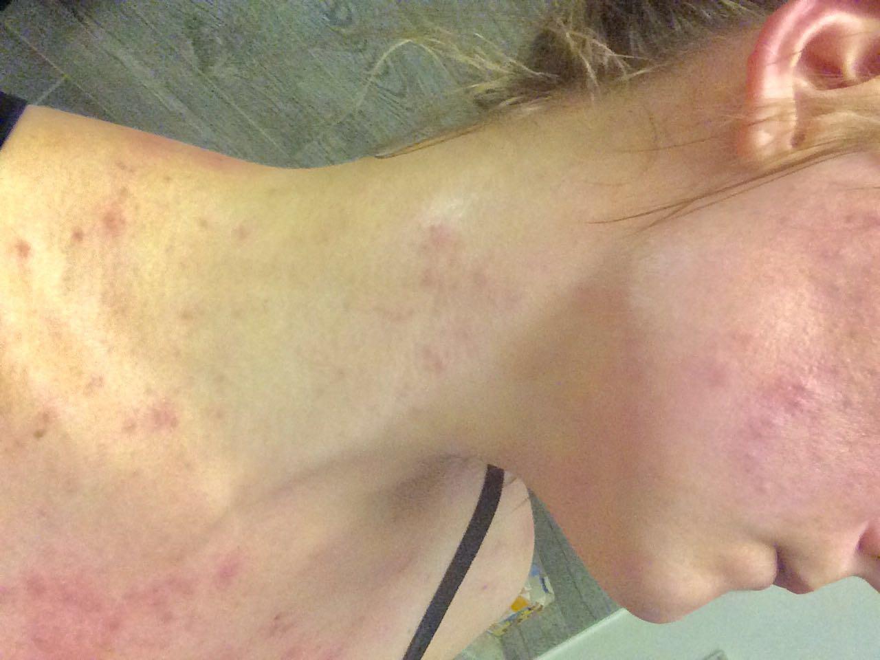 acne adult help