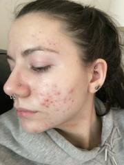 Before and After Acne.org