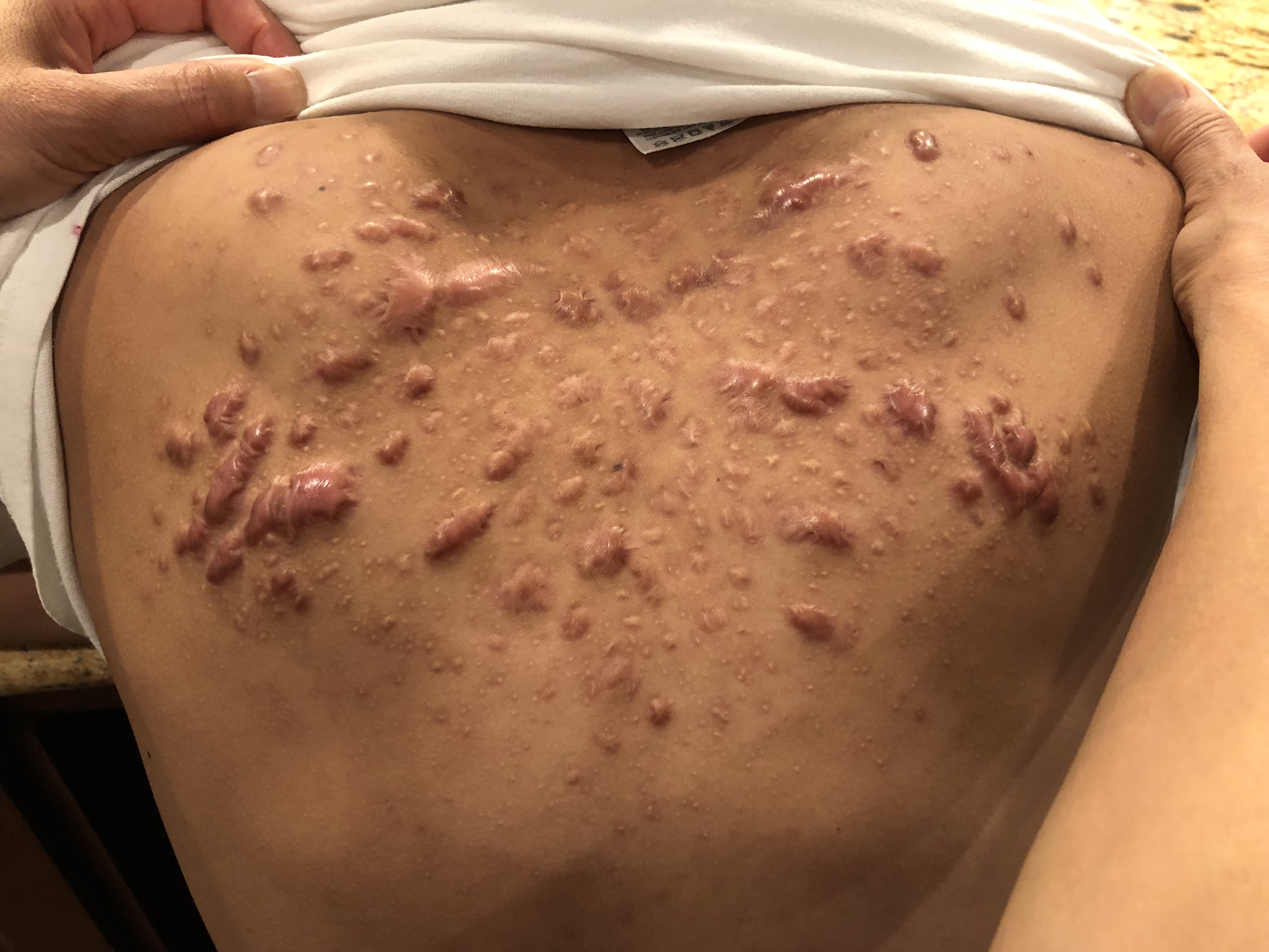 how to get rid of bad chest and back acne