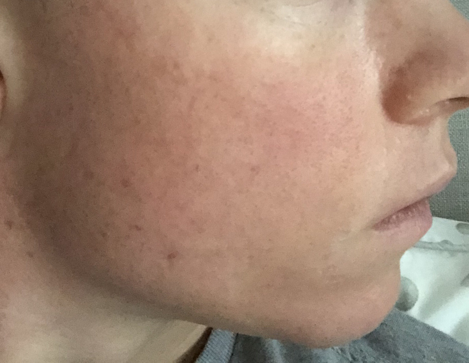 Isotretinoin For Acne Marks