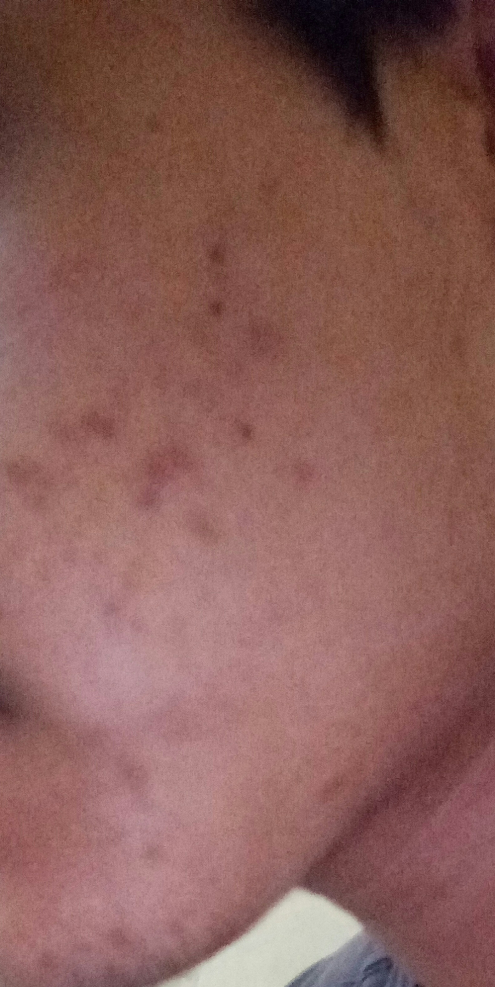 These dark brown spots have been on my face for about 15 days. How much  more time will they take to fade away? Please help? - Hyperpigmentation -  red/dark marks - Acne.org