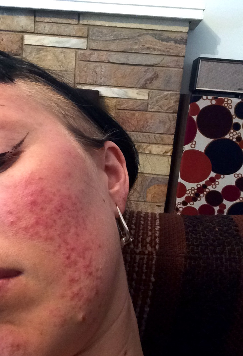 FINALLY Found a natural cure for my hormonal acne - Hormonal