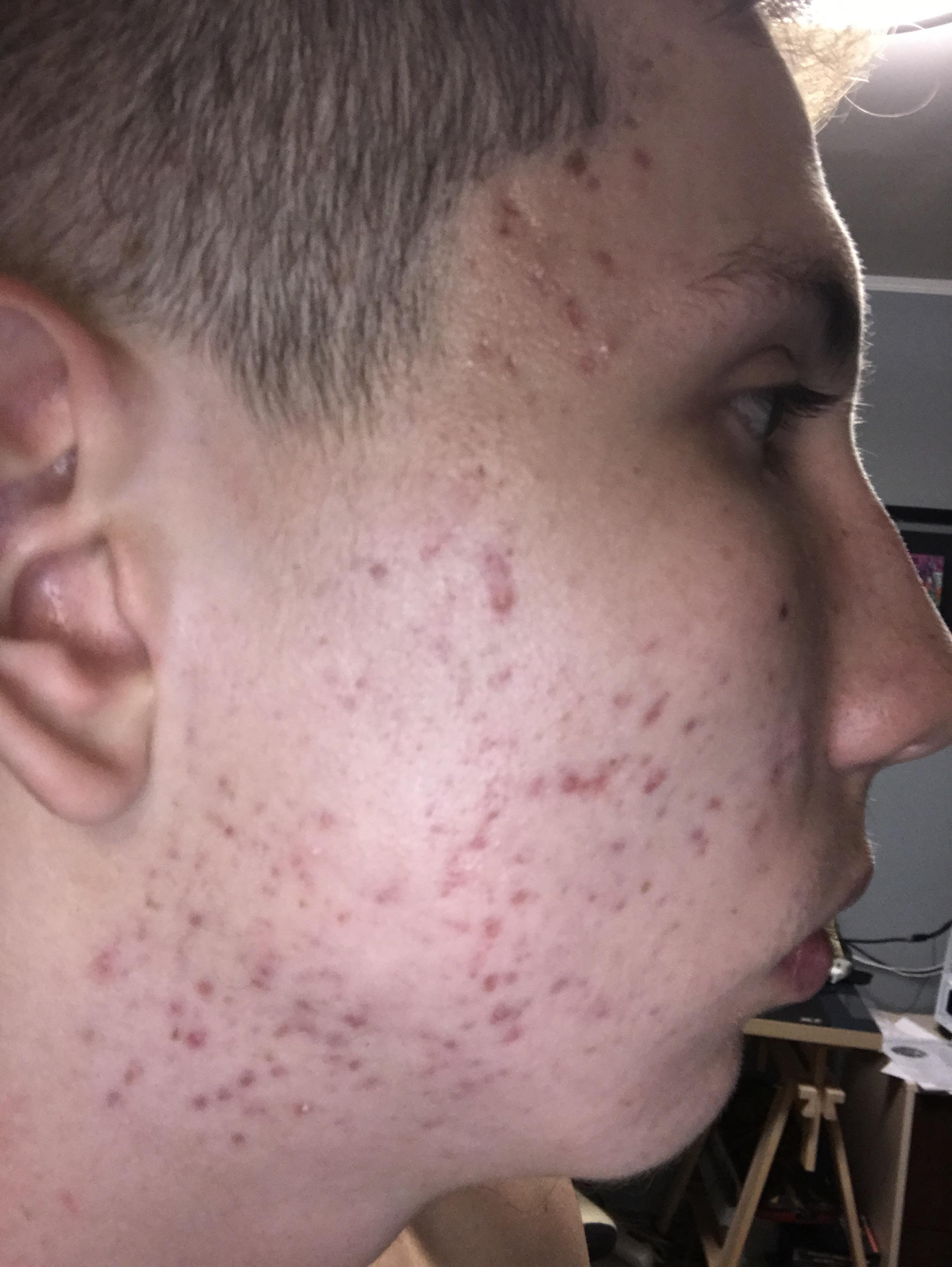 Help Me With My Postinflammatory Erythema Hyperpigmentation Red Dark Marks Acne Org